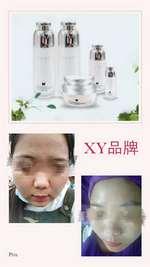 欣姿美妍XY品牌專業祛斑招商加盟